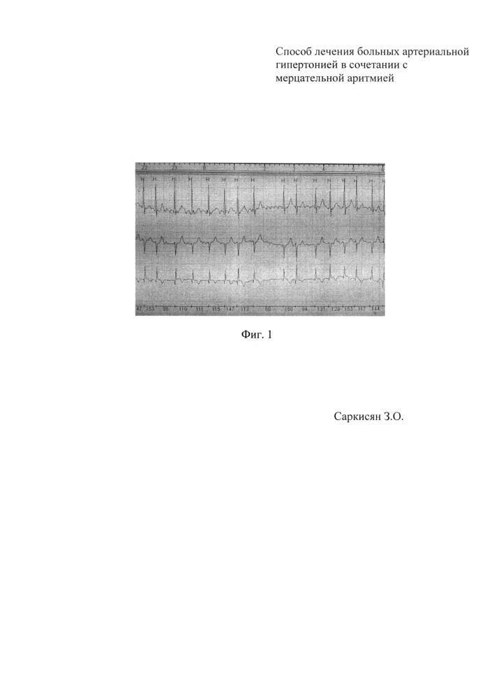 Способ лечения больных артериальной гипертонией в сочетании с мерцательной аритмией