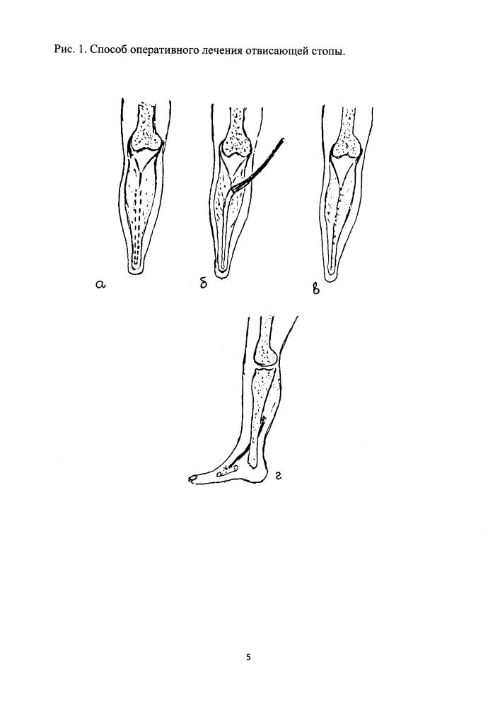 Способ оперативного лечения отвисающей стопы