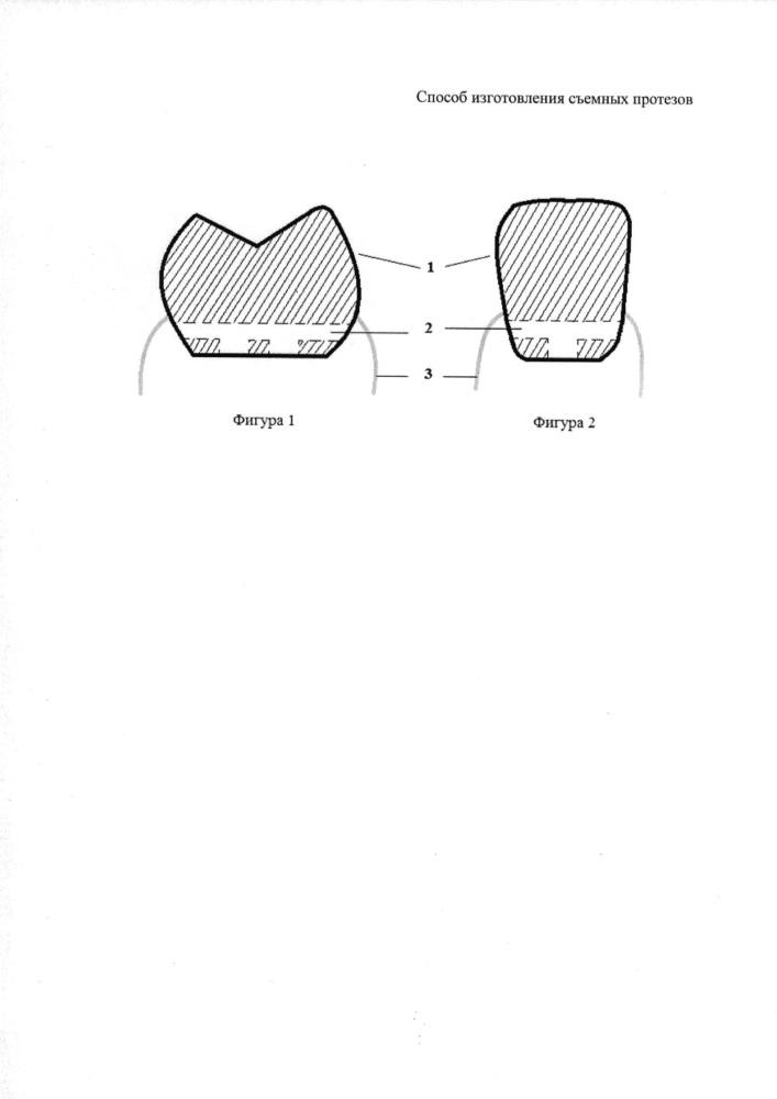 Способ изготовления съемных протезов