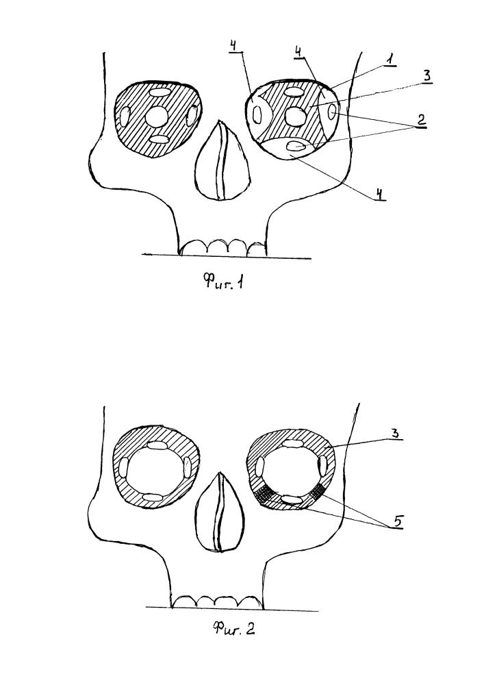 Способ хирургического лечения объемного дефицита орбитальных тканей