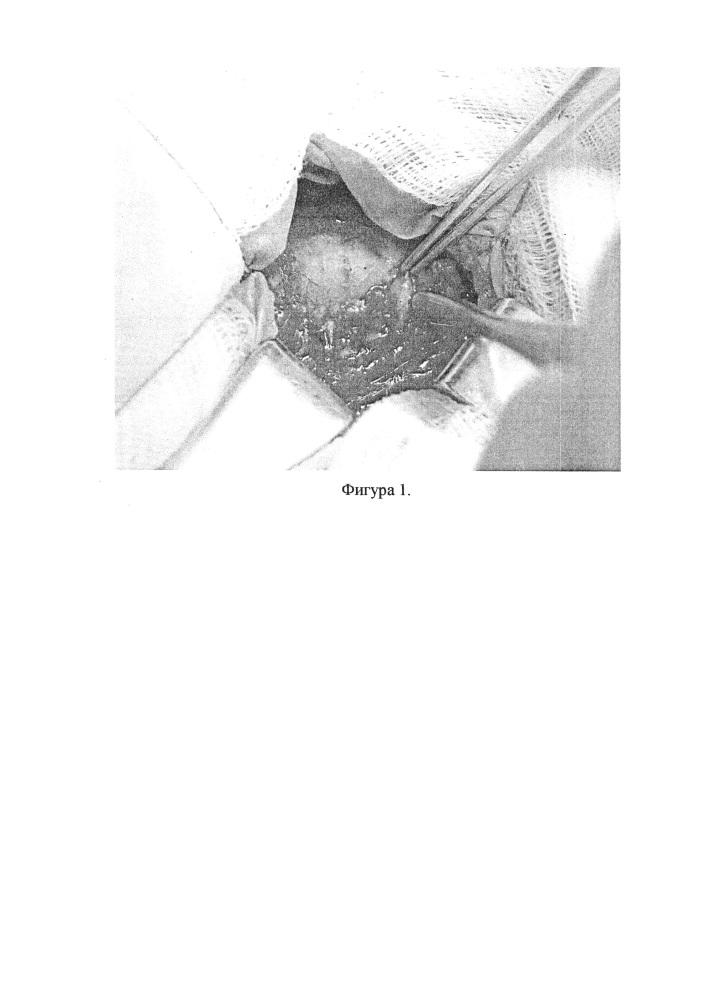 Способ интраоперационной визуализации околощитовидных желез