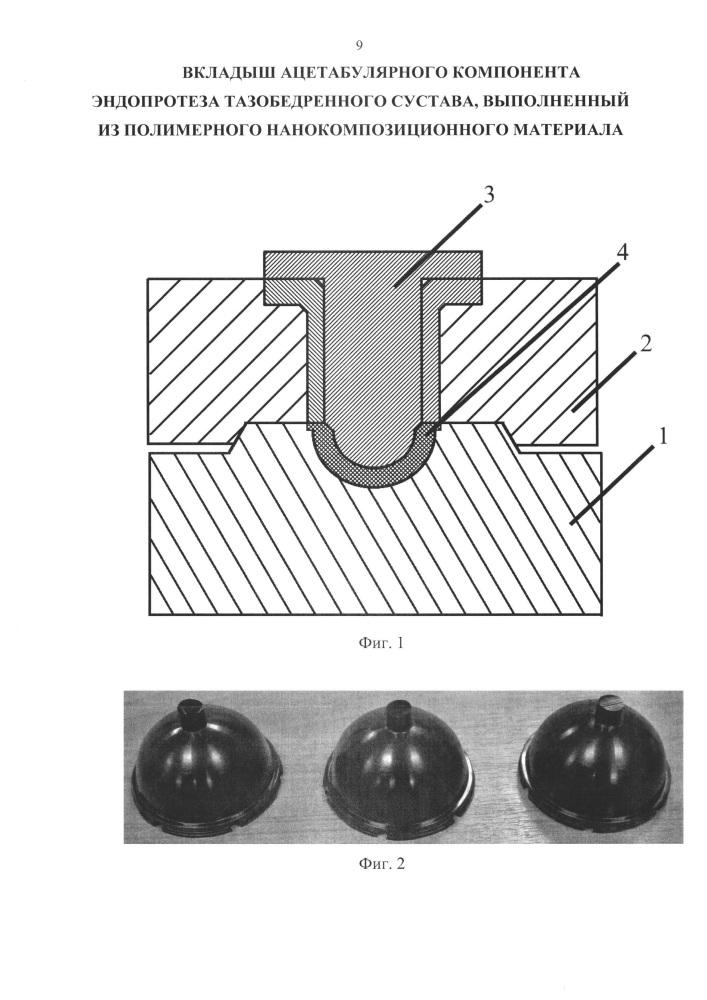 Вкладыш ацетабулярного компонента эндопротеза тазобедренного сустава, выполненный из полимерного нанокомпозиционного материала
