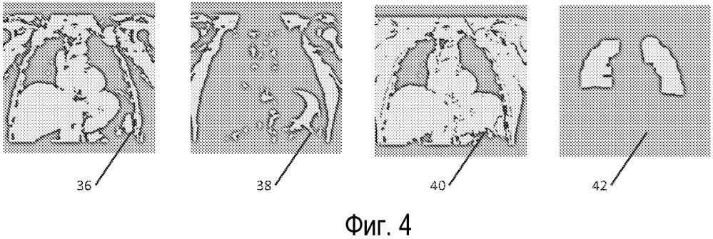 Эффективные последовательности выполняемых действий магнитно-резонансной визуализации сердца на основании автоматизированного планирования по обзорным исследованиям по технологии mdixon