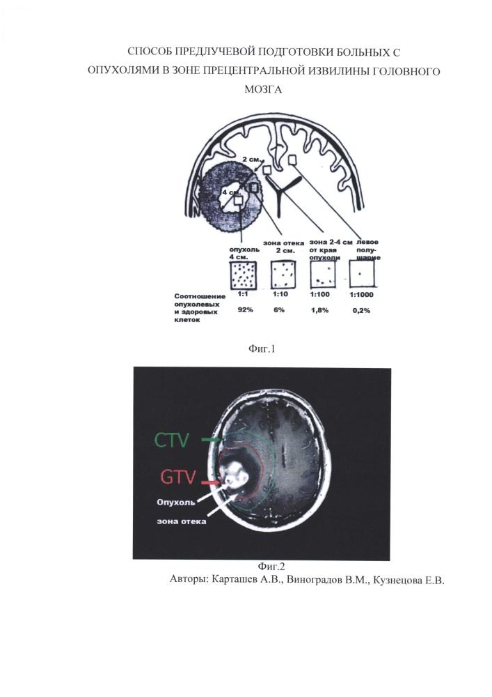 Способ предлучевой подготовки больных с опухолями в зоне прецентральной извилины головного мозга