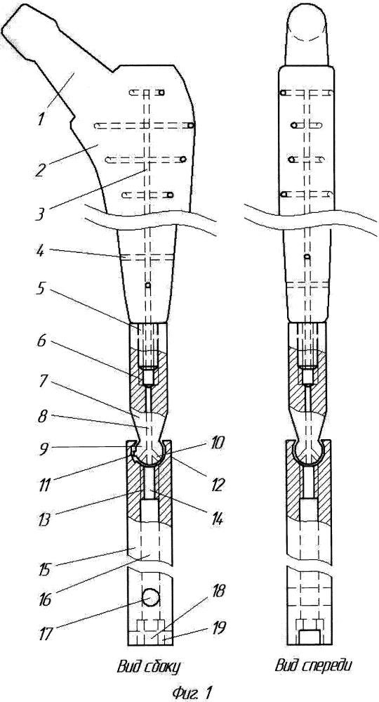 Комплект для эндопротезирования тазобедренного сустава