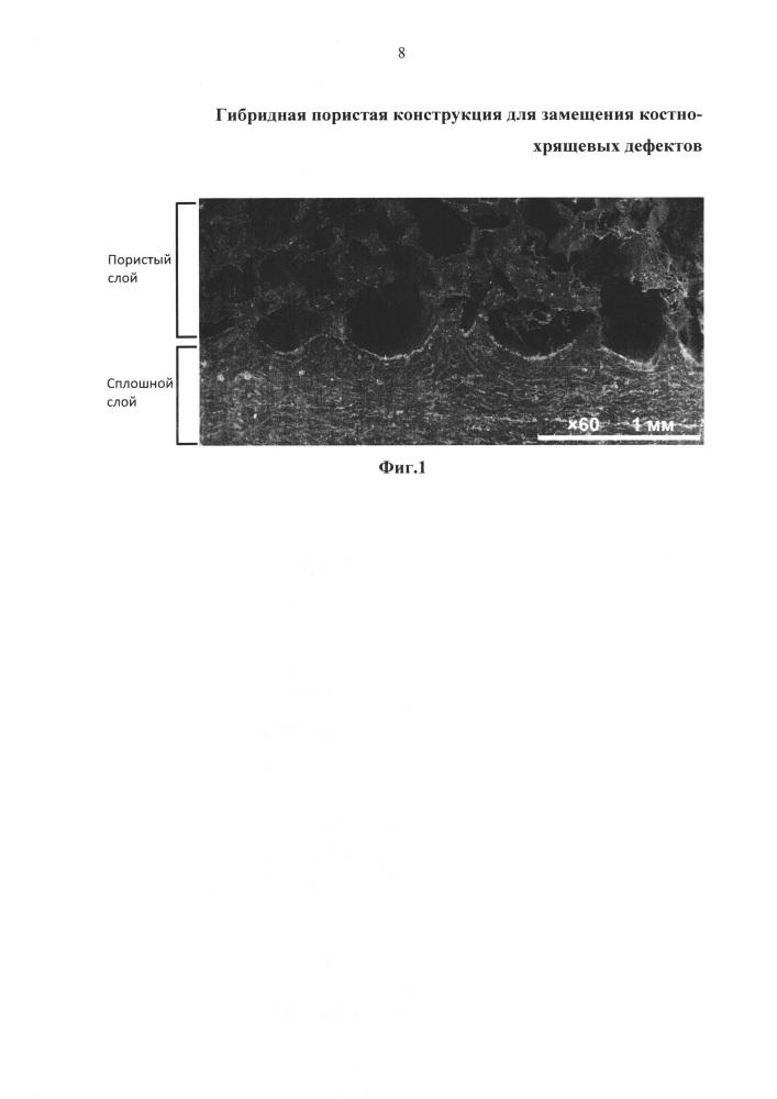 Гибридная пористая конструкция для замещения костно-хрящевых дефектов