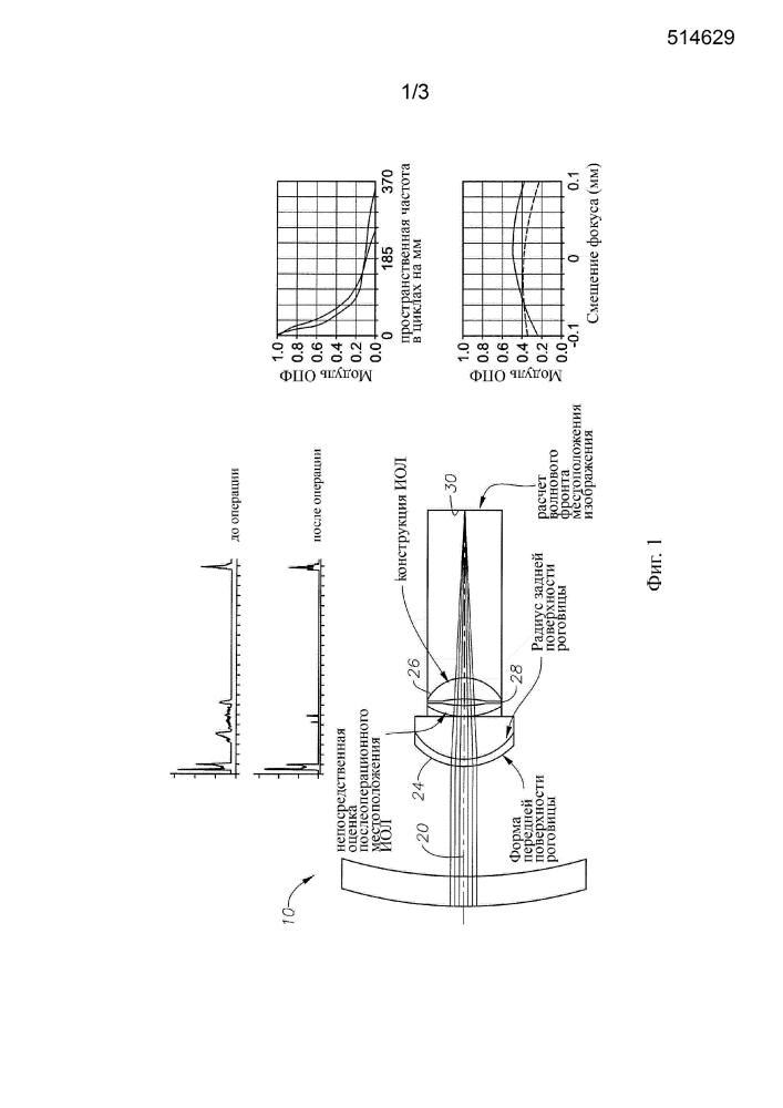 Расчет оптической силы интраокулярной линзы (иол) в соответствии с непосредственно определенным положением иол
