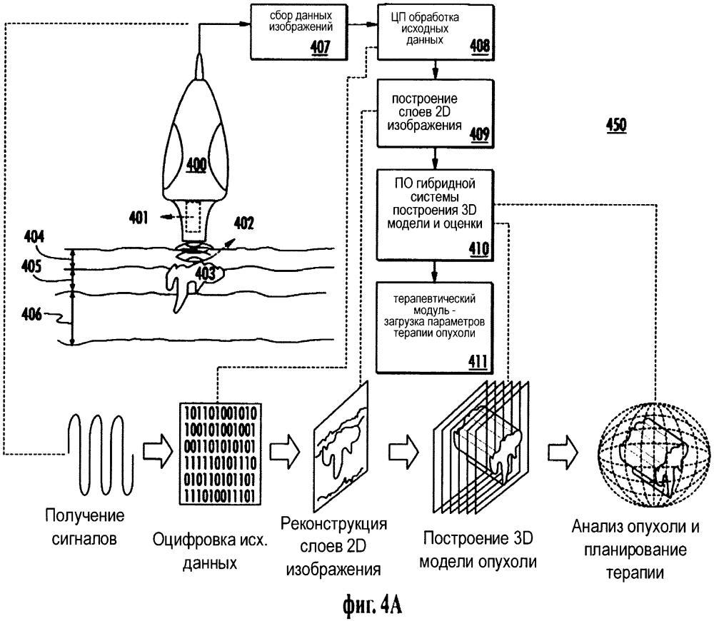 Система и способ гибридной поверхностной радиотерапии с ультразвуковым контролем