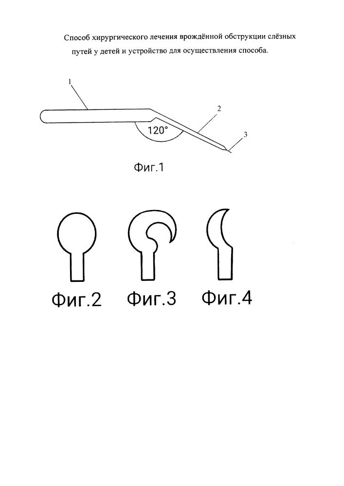 Способ хирургического лечения врождённой обструкции слёзных путей у детей и устройство для осуществления способа