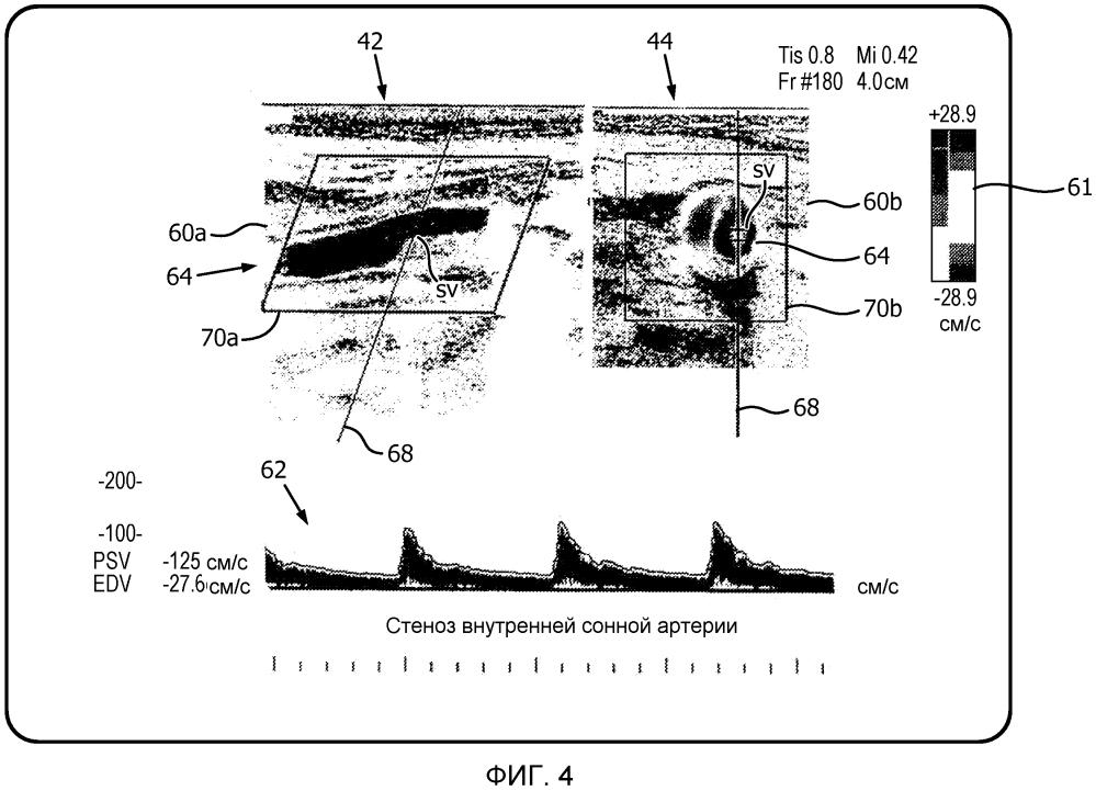 Автоматизированная последовательность операций в двухплоскостном режиме pw для ультразвуковой оценки стеноза