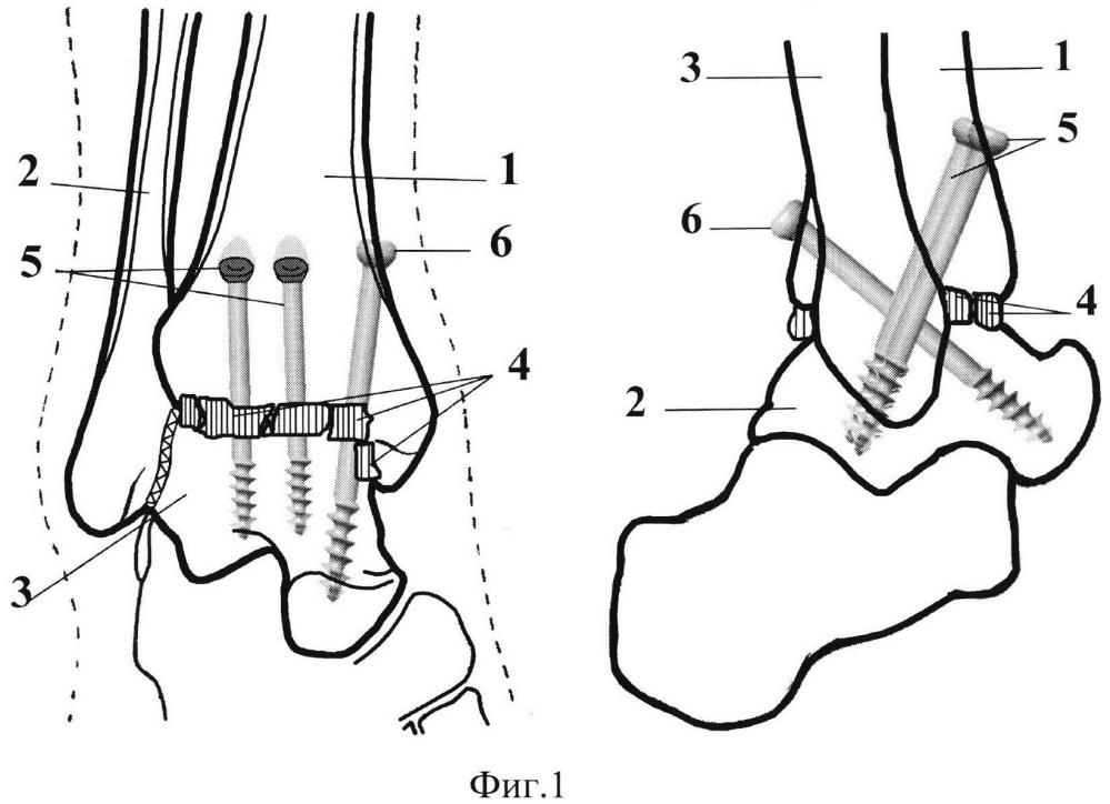 Способ выполнения артродеза голеностопного сустава с использованием трех спонгиозных винтов