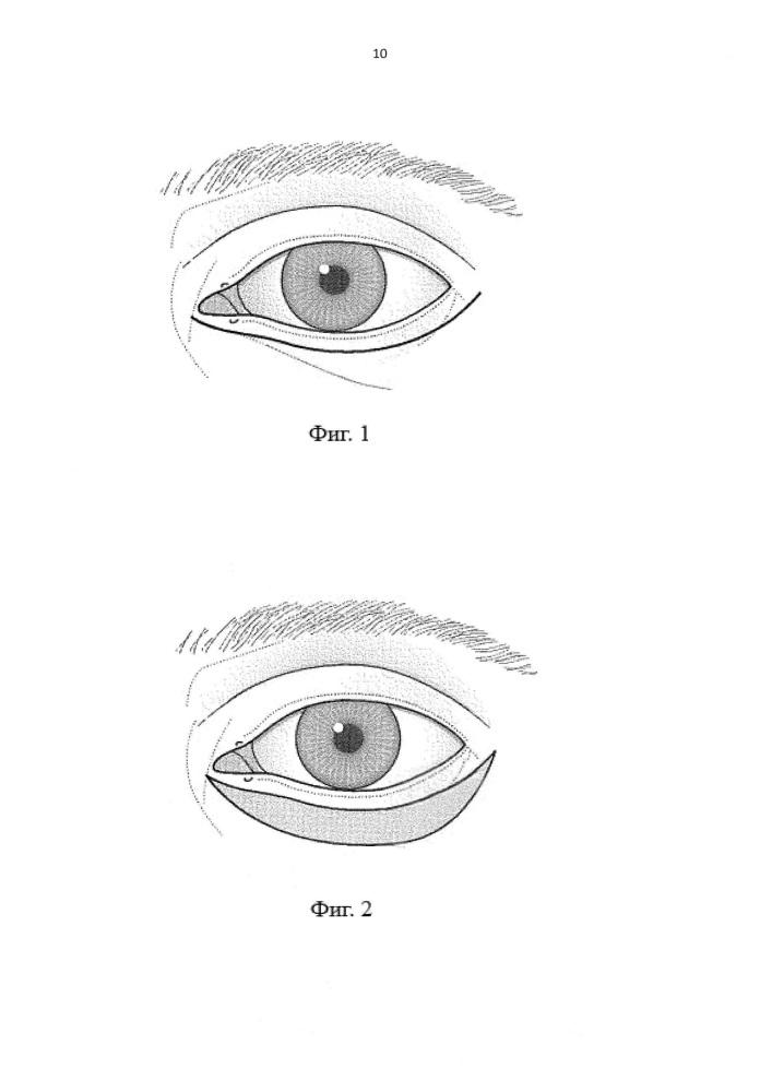 Способ устранения паралитического лагофтальма