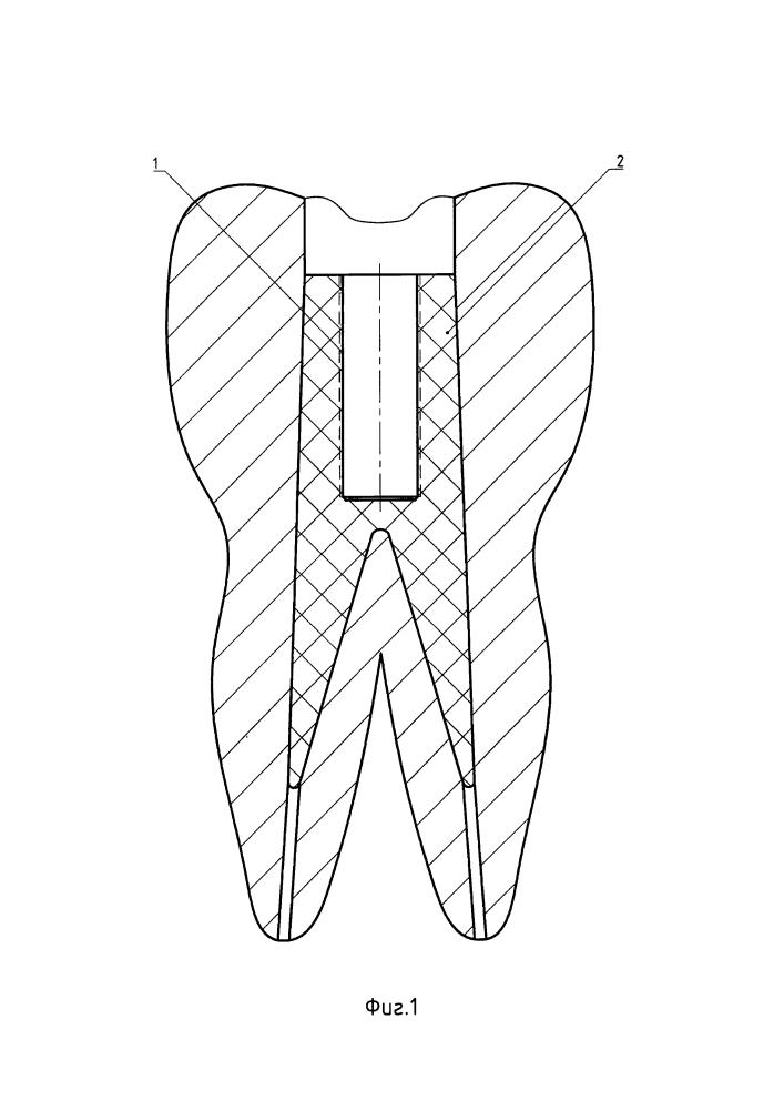 Способ и набор для винтовой фиксации металлокерамических мостовидных протезов к зубам