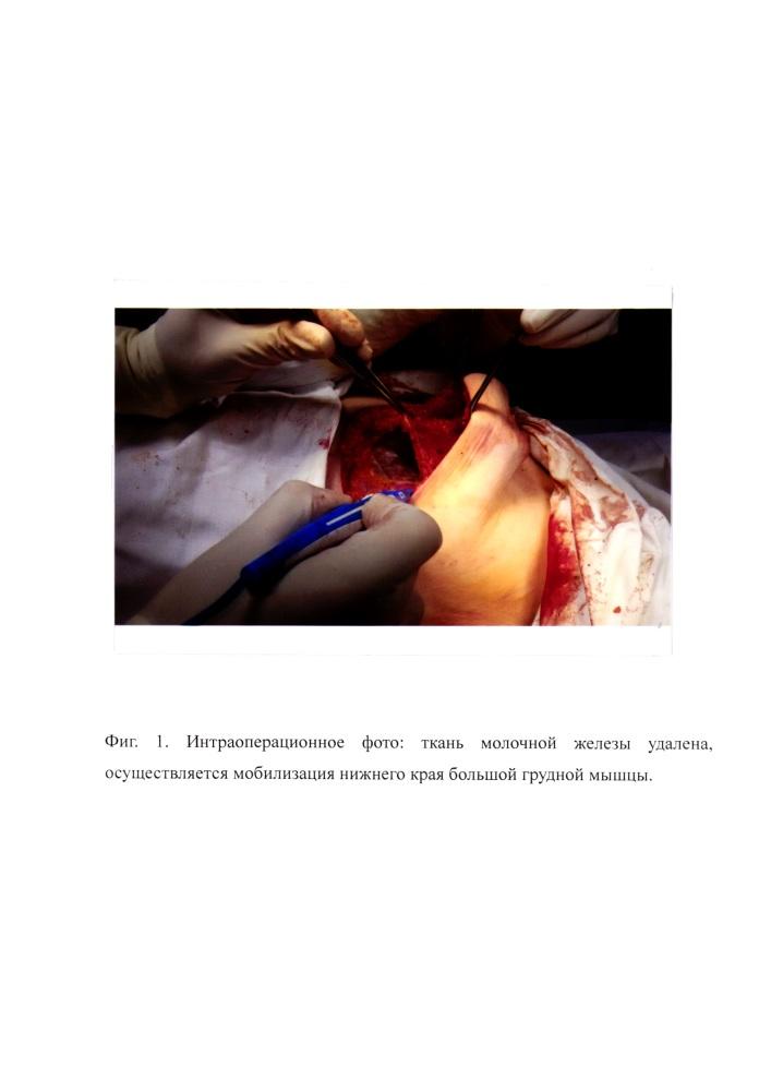 Способ фиксации и стабилизации силиконового имплантата после кожесохраняющей мастэктомии