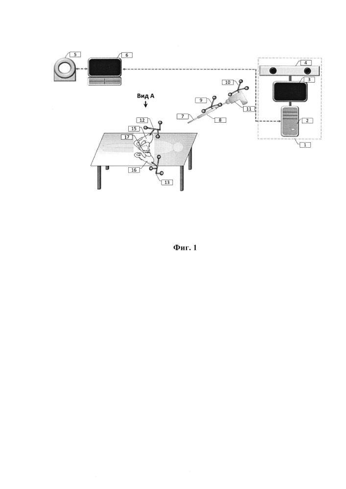 Способ использования оптической медицинской навигационной системы для визуализации и количественной оценки качества репозиции отломков при переломе кости таза