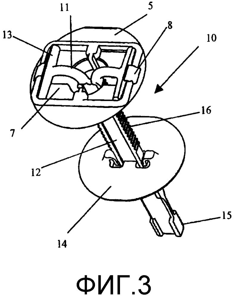Устройство для фиксации фрагмента черепа к венечной части черепа для размещения в трепанационном отверстии или разрезе