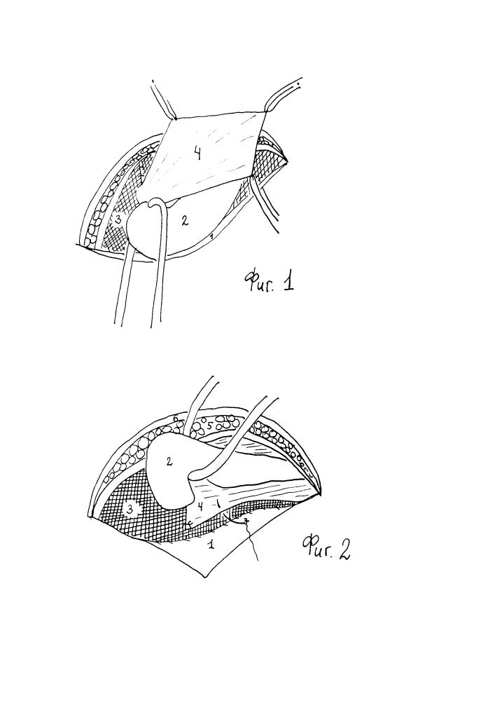 Способ перитонизации трансплантата брюшиной грыжевого мешка при аллопластике косой паховой грыжи