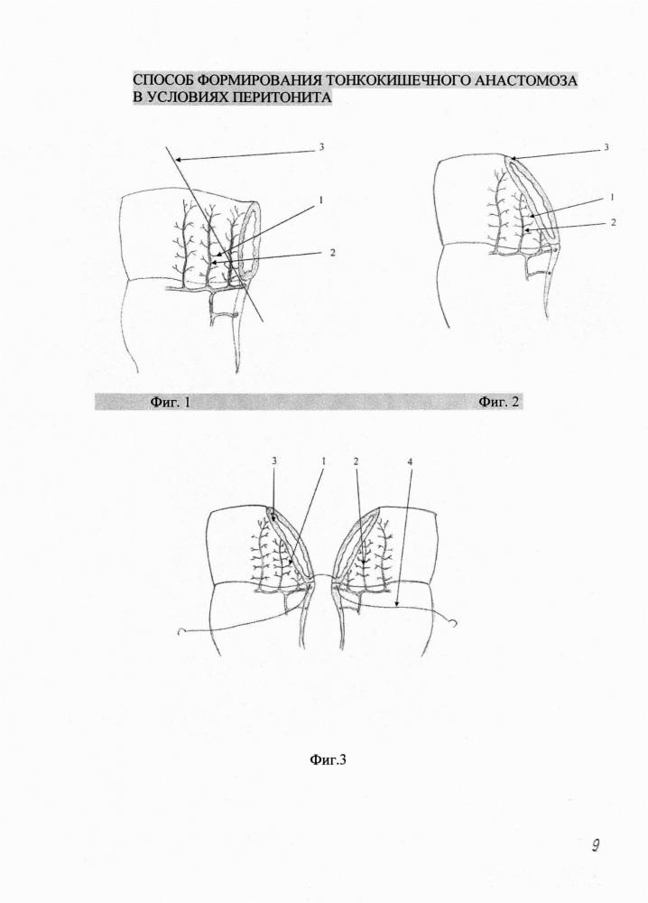 Способ формирования тонкокишечного анастомоза в условиях перитонита