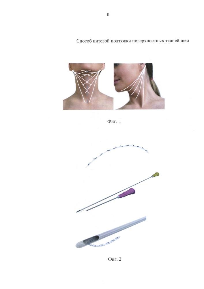 Способ нитевой подтяжки поверхностных тканей шеи