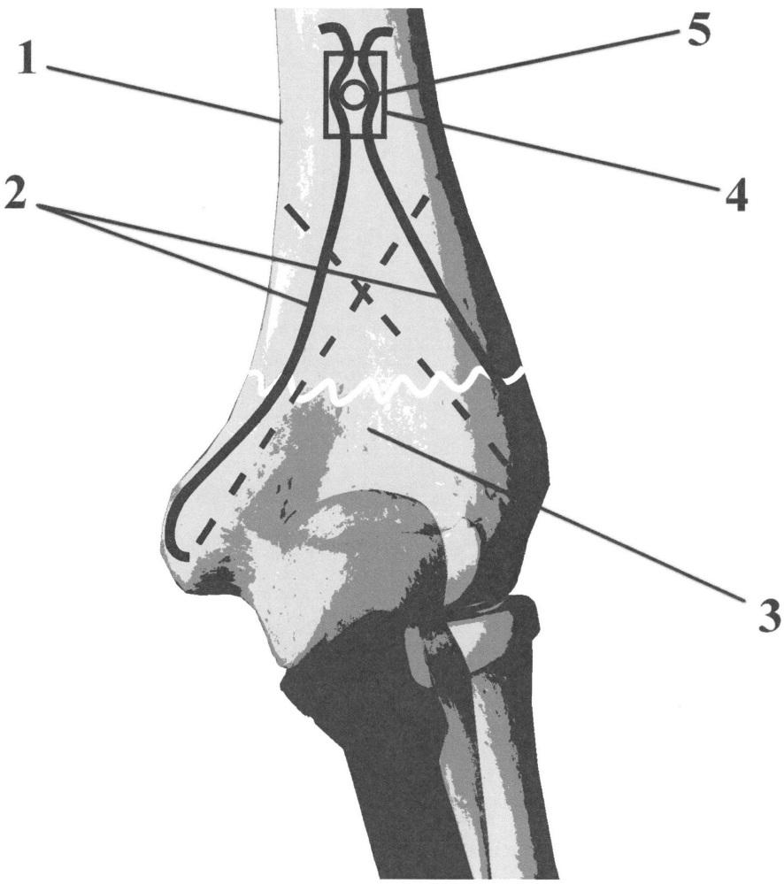 Способ упруго-напряженного остеосинтеза дистального отдела плечевой кости