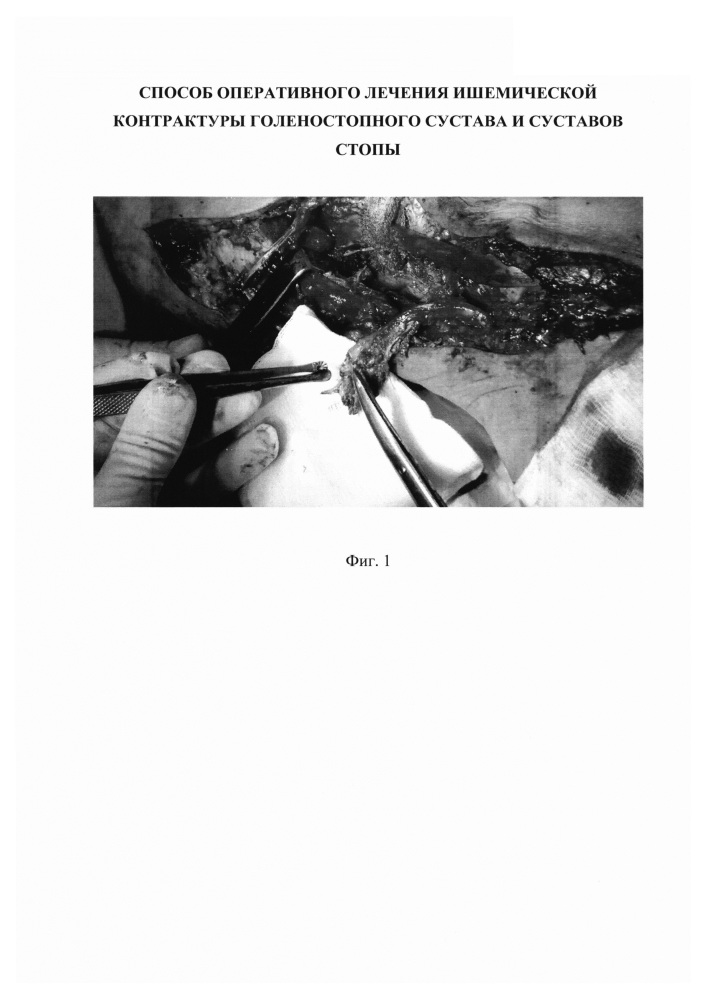 Способ оперативного лечения ишемической контрактуры голеностопного сустава и суставов стопы