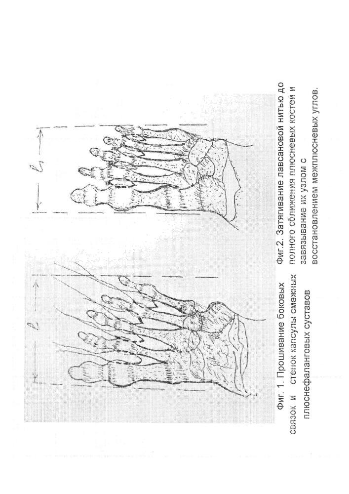 Способ лечения поперечной распластанности стопы