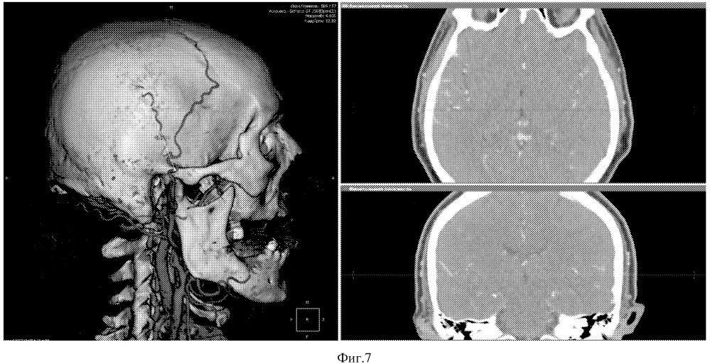 Способ планирования мини-доступа для создания экстра-интракраниального микроанастомоза с использованием мскт-ангиографии головного мозга в 3d реконструкции.