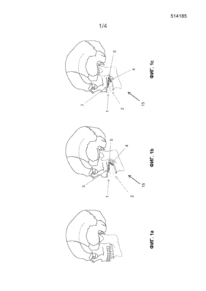 Стоматологическое устройство для исправления неправильного прикуса зубов