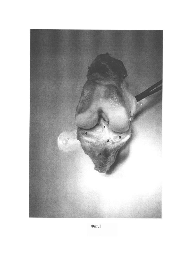 Способ изготовления анатомического препарата коленного сустава человека