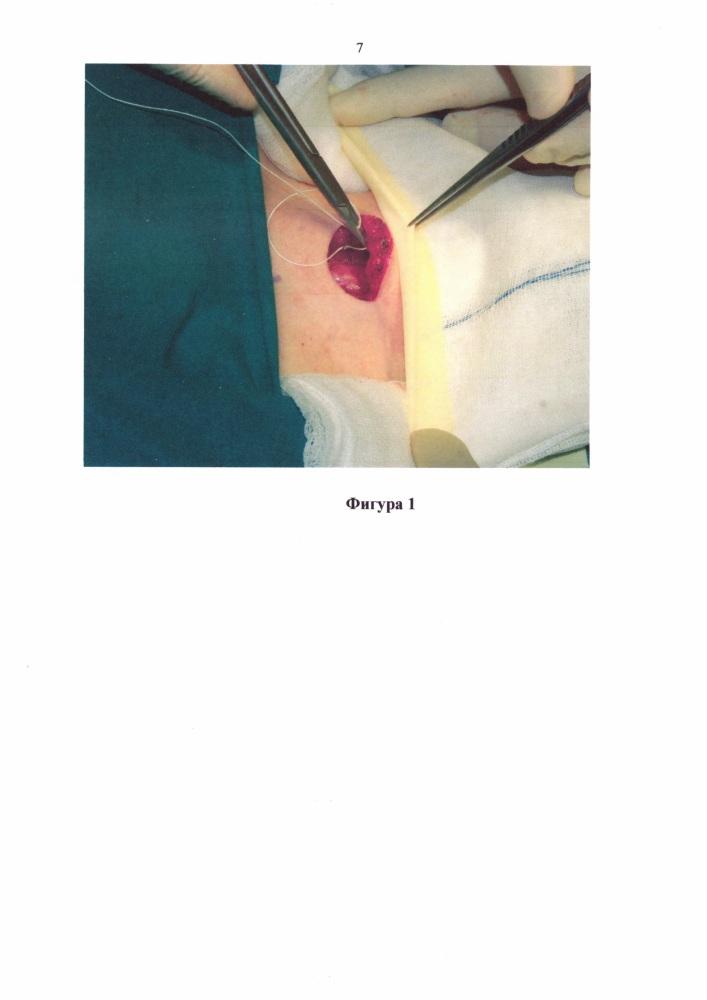 Защитный обклад для операционной раны