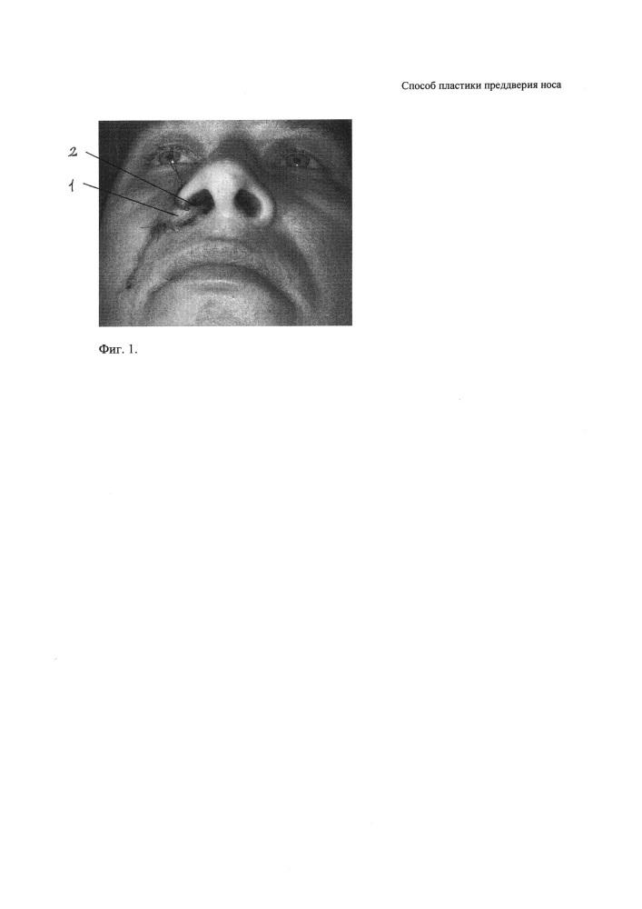 Способ пластики преддверия носа