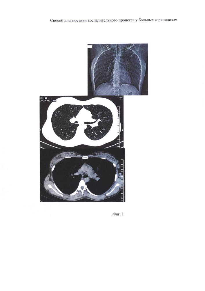 Способ диагностики воспалительного процесса в легких и во внутригрудных лимфатических узлах у больных саркоидозом
