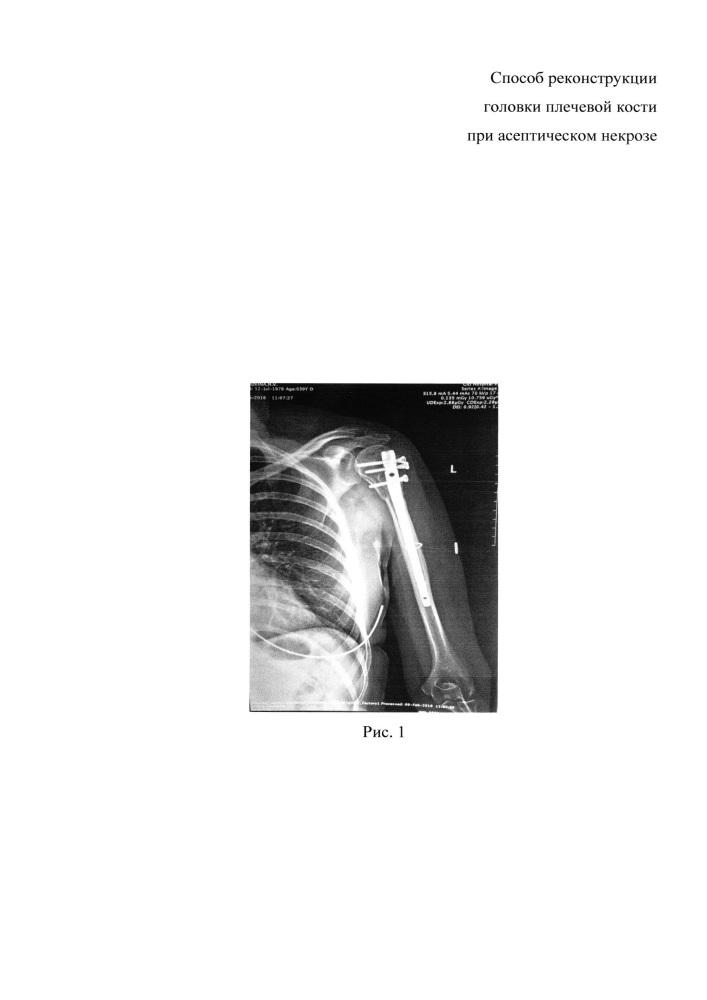 Способ реконструкции головки плечевой кости при асептическом некрозе