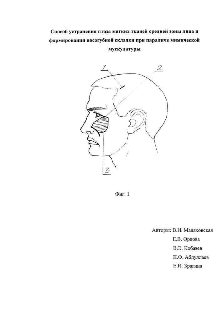 Способ устранения птоза мягких тканей средней зоны лица и формирования носогубной складки при параличе мимической мускулатуры