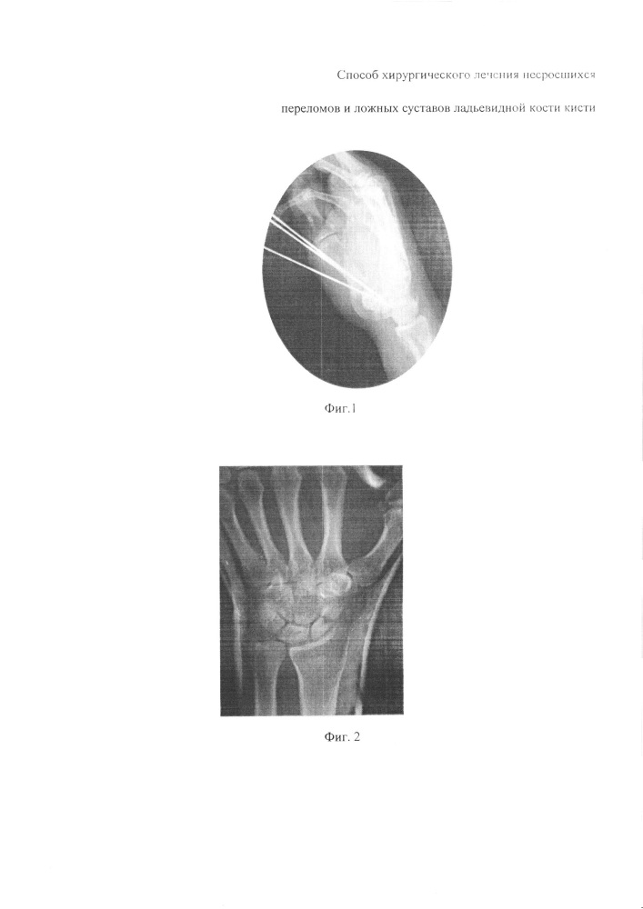 Способ хирургического лечения ложных суставов ладьевидной кости кисти