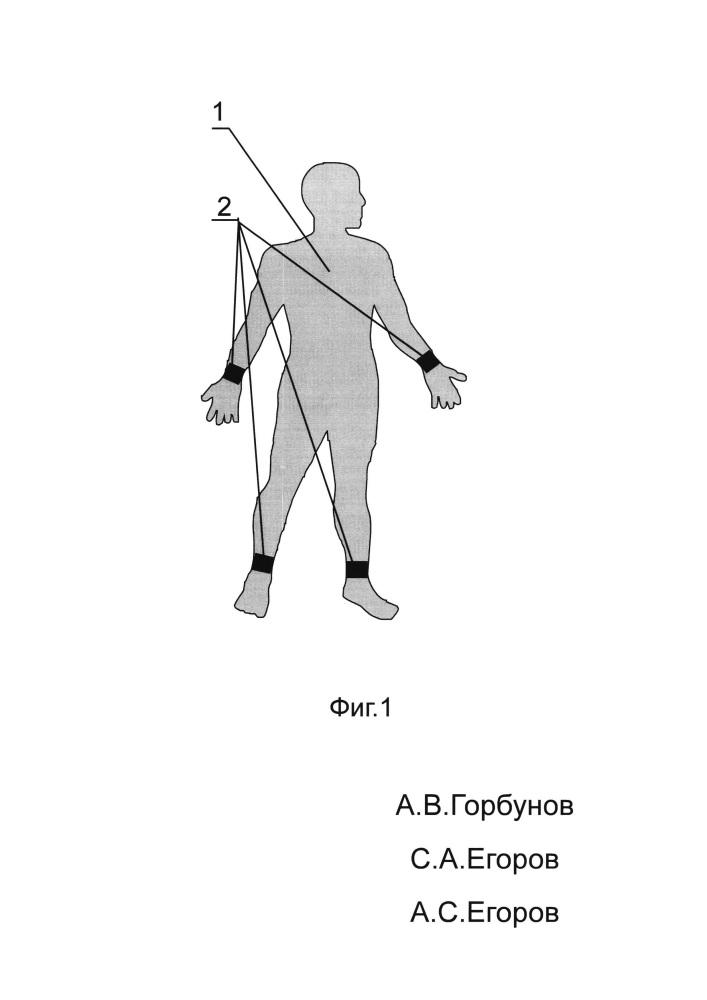 Способ диагностики эпилепсии и устройство для его реализации