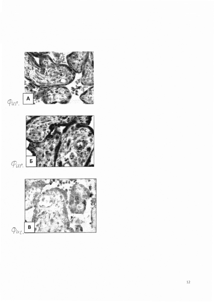 Способ диагностики тяжести преэклампсии на основании оценки экспрессии днк - распознающих рецепторов dai-1 в ткани плаценты