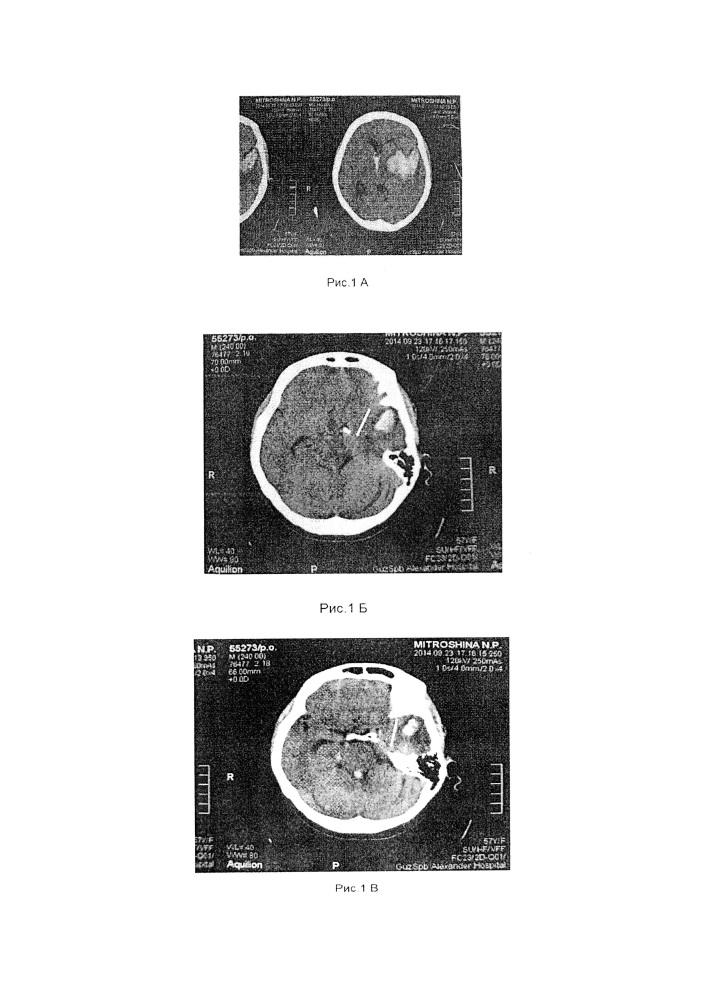 Способ прогнозирования развития сепсиса у больных с нетравматическими внутричерепными кровоизлияниями