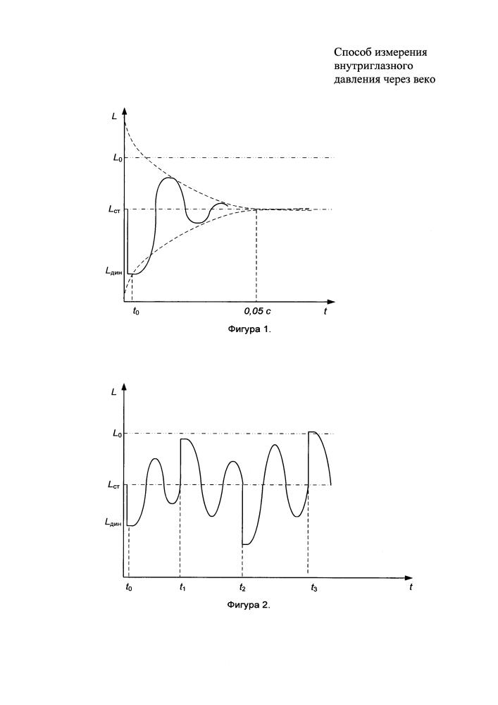 Способ измерения внутриглазного давления через веко (варианты)