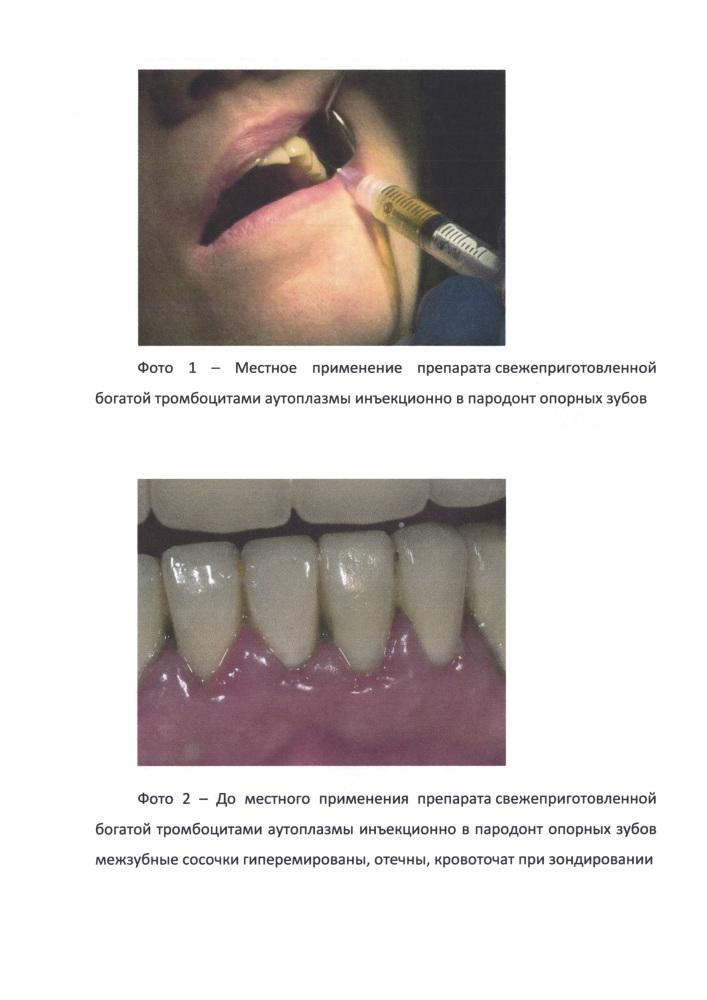 Способ локальной иммунокоррекции у стоматологических ортопедических пациентов
