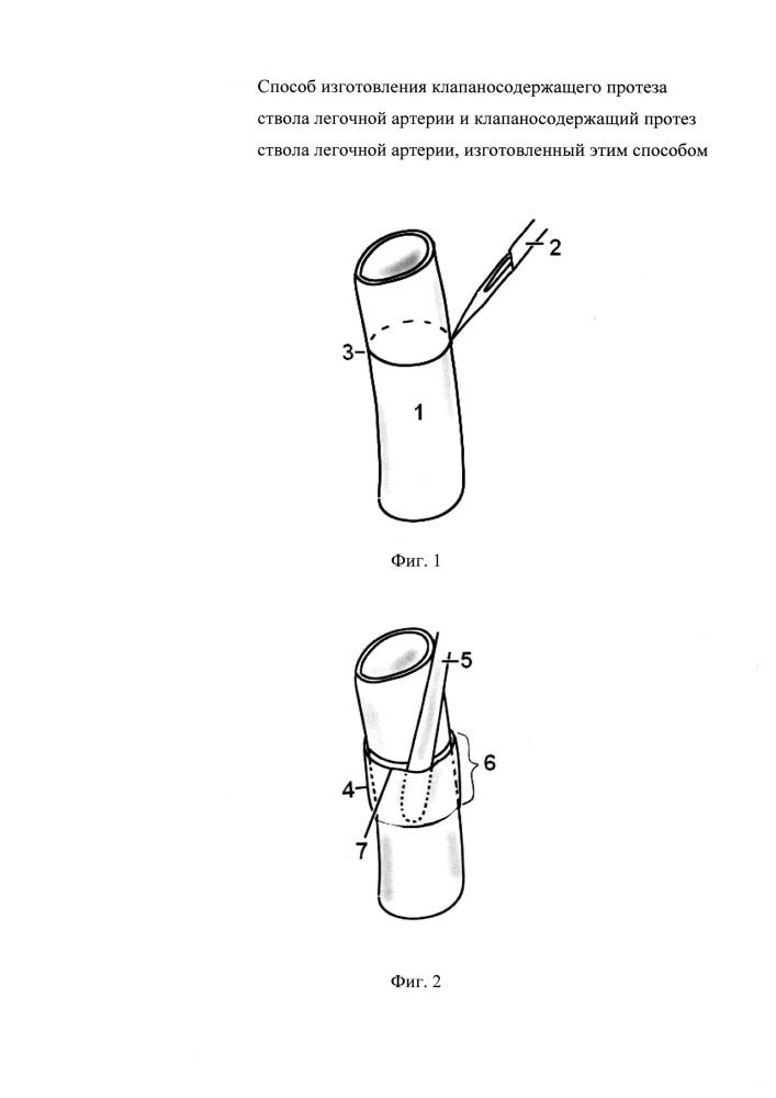 Способ изготовления клапаносодержащего протеза ствола легочной артерии и клапаносодержащий протез ствола легочной артерии, изготовленный этим способом