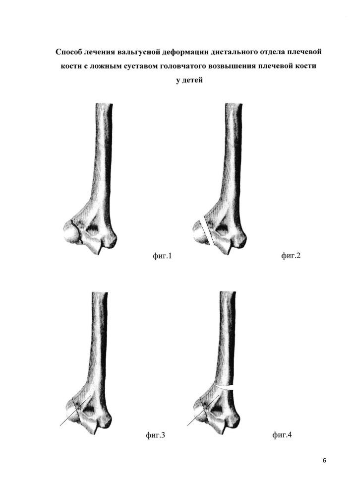Способ лечения вальгусной деформации дистального отдела плечевой кости с ложным суставом головчатого возвышения плечевой кости у детей