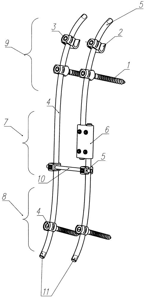 Динамический аппарат для исправления сколиотической деформации позвоночника и способ его применения