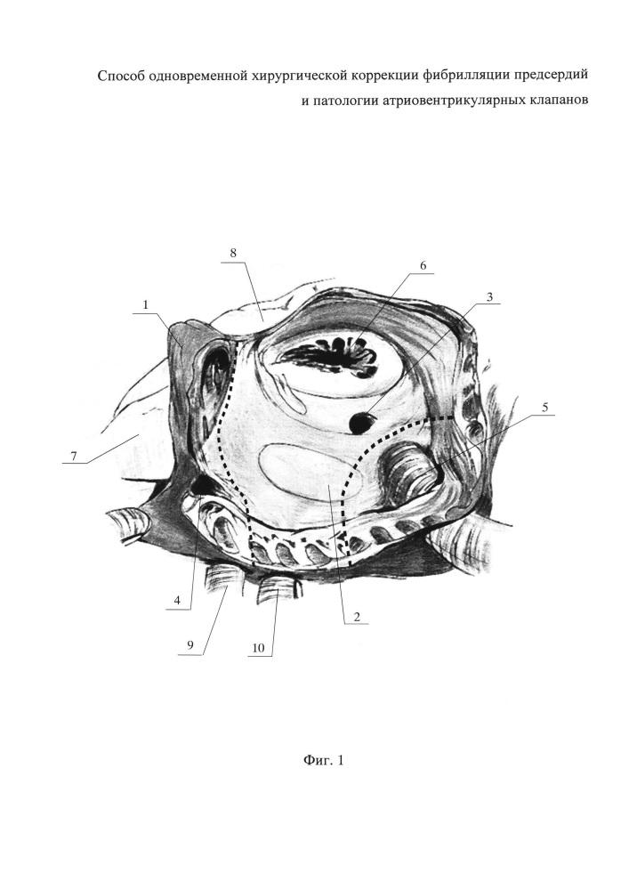 Способ одновременной хирургической коррекции фибрилляции предсердий и патологии атриовентрикулярных клапанов