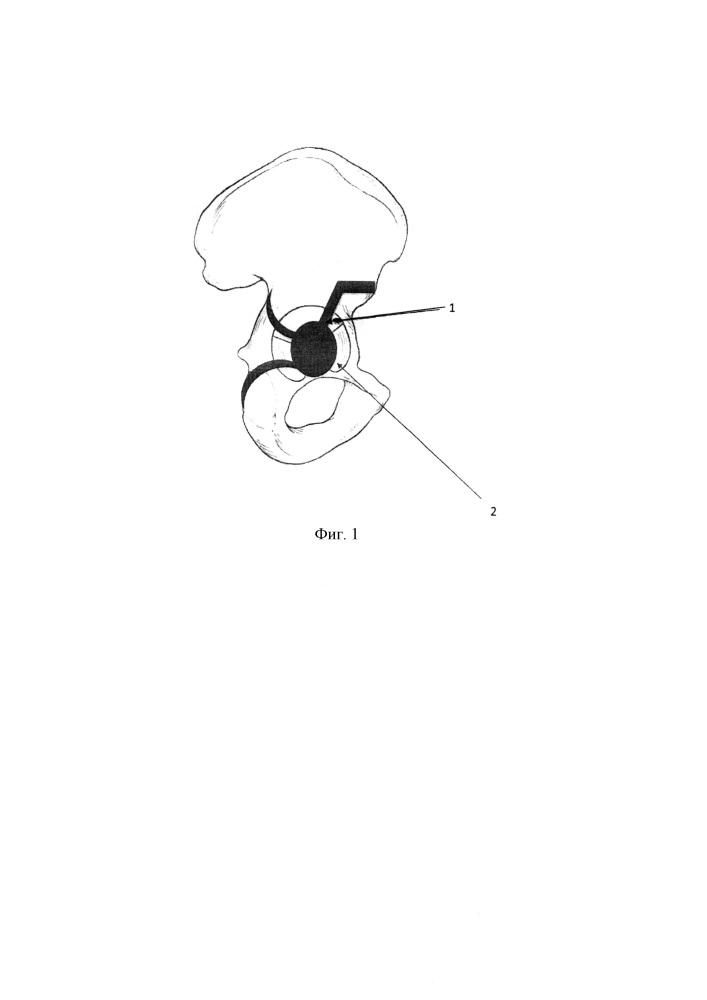 Способ эндопротезирования тазобедренного сустава при высокоэнергетическом двухколонном переломе вертлужной впадины при центральном вывихе бедра