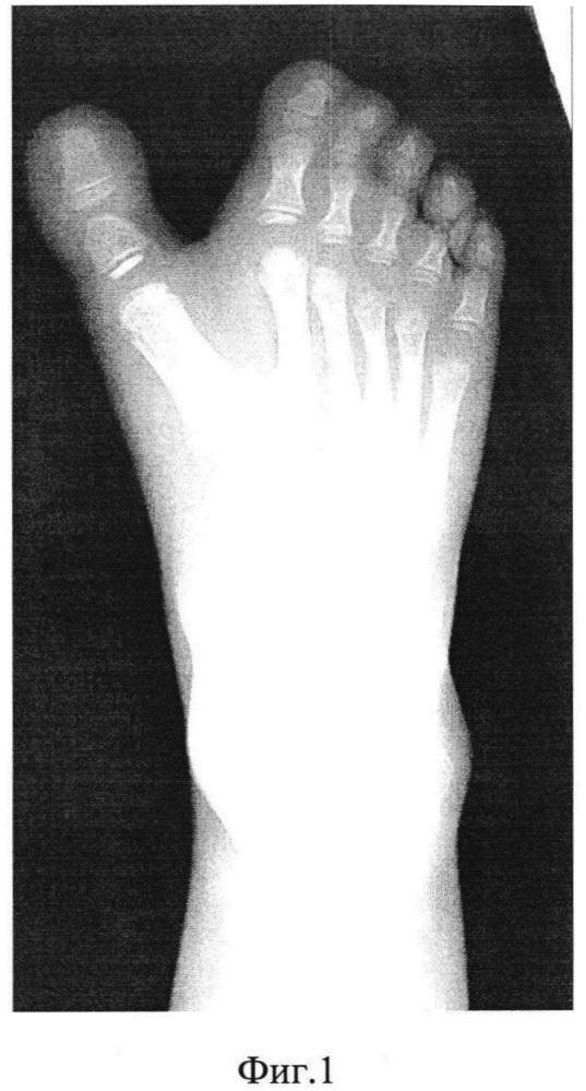 Способ лечения полидактилии при наличии шести нормально развитых лучей стопы