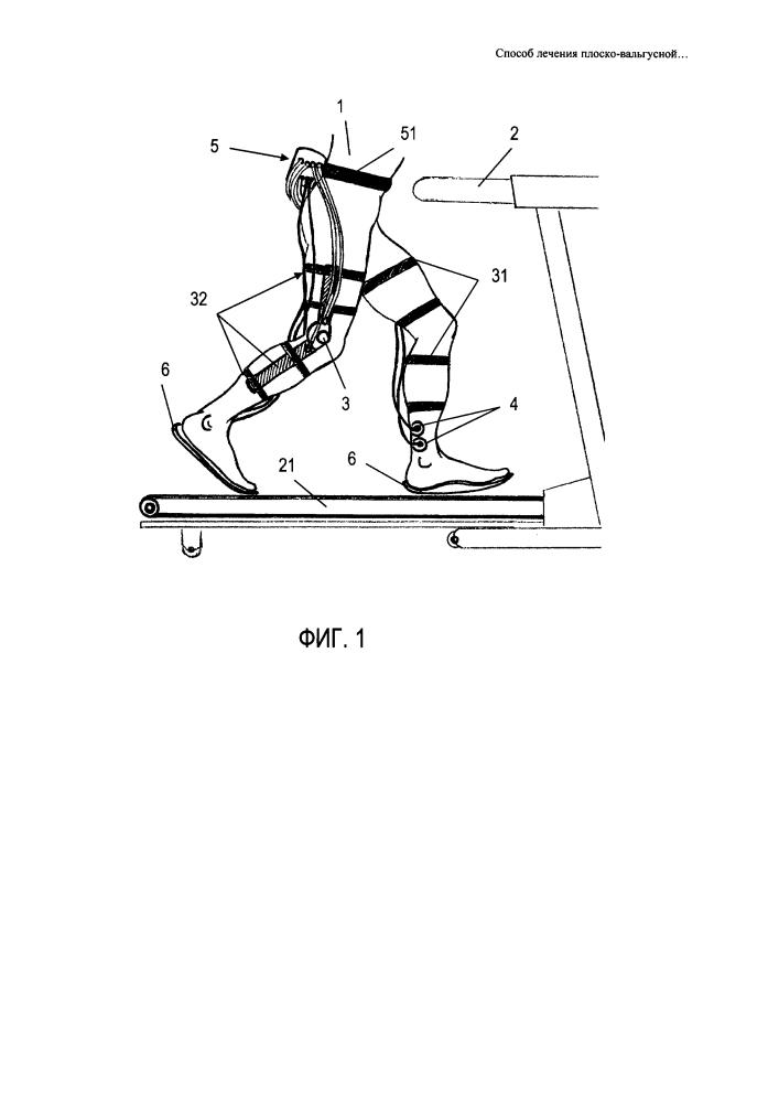 Способ лечения плоско-вальгусной установки стоп и продольного плоскостопия у детей