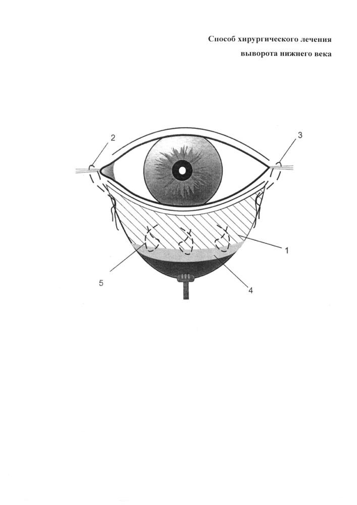 Способ хирургического лечения выворота нижнего века