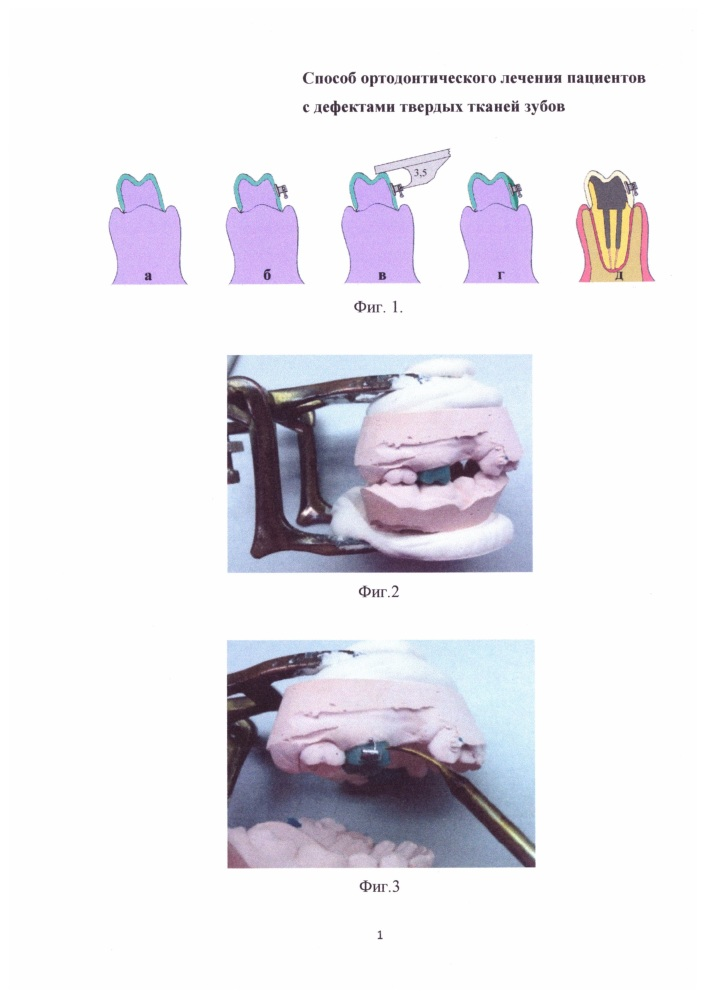 Способ ортодонтического лечения пациентов с дефектами твердых тканей зубов