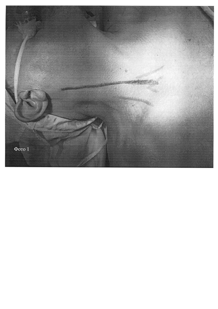 Способ хирургического доступа к сонным и подключичной артериям при одноментных вмешательствах по поводу одностороннего атеросклеротического поражения